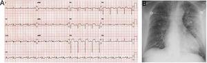 Electrocardiograma de 12 derivaciones (A) y radiografía de tórax (B) al ingreso.