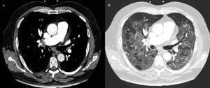 Angiografía por tomografía computarizada. A: embolia pulmonar bilateral. B: condensaciones bilaterales en vidrio deslustrado.