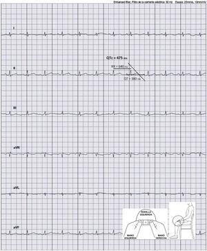 Medición del intervalo QTc en un registro electrocardiográfico realizado con el dispositivo KardiaMobile 6L. QTc: intervalo QT corregido.