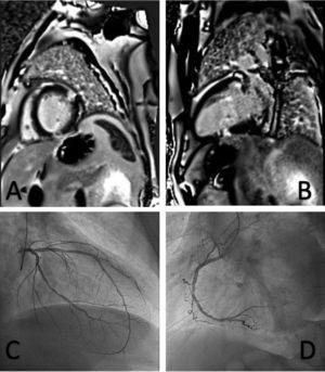 A: cardiorresonancia magnética, eje corto. B: cardiorresonancia magnética, eje largo. C: coronariografía izquierda. D: coronariografía derecha.