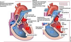Tratamiento de la tetralogía de Fallot reparada: complicaciones a largo plazo que atender en el seguimiento. AD: aurícula derecha; AI: aurícula izquierda; Ao: aorta; AP: arteria pulmonar; <span class=