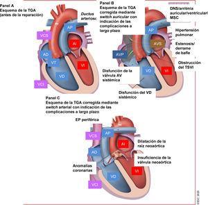 Tratamiento de la transposición de las grandes arterias: complicaciones a largo plazo que atender en el seguimiento. AD: aurícula derecha; AI: aurícula izquierda; Ao: aorta; AV: auriculoventricular; AVP: aurícula venosa pulmonar; AVS: aurícula venosa sistémica; DNS: disfunción del nódulo sinusal; EP: estenosis pulmonar (rama arterial pulmonar/supravalvular); <span class=
