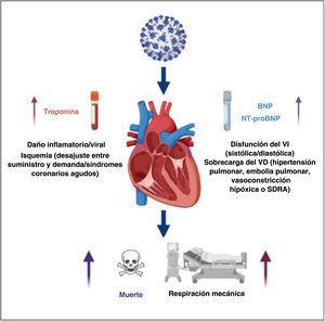 Papel pronóstico de las troponinas cardiacas y los péptidos natriuréticos en pacientes con COVID-19. BNP:propéptido natriurético cerebral; NT-proBNP:fracción aminoterminal del propéptido natriurético cerebral; SDRA:síndrome de dificultad respiratoria aguda; VD:ventrículo derecho; VI:ventrículo izquierdo.