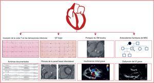 Marcadores específicos de aumento de muerte súbita cardiaca (MSC) con prolapso de la válvula mitral.