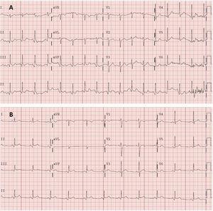 A: electrocardiograma en urgencias. Taquicardia sinusal a 105lpm, eje normal (90°). PR normal (120ms). QRS estrecho. Onda Q no significativa en cara inferior. Sin alteraciones agudas de la repolarización. QT corregido en intervalo normal. B:electrocardiograma en consultas de cardiología, 2días después. Ritmo sinusal a 75lpm, eje normal. PR normal (120ms), con descenso del segmento PR. QRS estrecho. Supradesnivelación del segmento ST, cóncava y generalizada. QT corregido en intervalo normal.