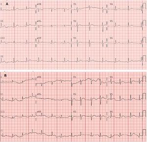 A: electrocardiograma en urgencias en ritmo sinusal a 75lpm. Eje normal. QRS estrecho, supradesnivelación del ST en cara inferolateral. QT corregido en intervalo normal. B:electrocardiograma realizado 5días después, en ritmo sinusal a 85lpm. Eje normal. QRS estrecho. Supradesnivelacion de ST generalizada, de morfología cóncava. QT en intervalo normal.
