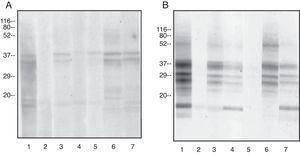 Inmmunoblot inhibition. Dilution serum 1/2. Solid phase: 50μg protein/lane. Inhibition: 500μg protein. A: Solid phase: goat casein B: Solid phase: sheep casein Lane 1: No inhibition Lane 1: No inhibition Lane 2: Inhibition with goat casein Lane 2: Inhibition with sheep casein Lane 3: Inhibition with goat whey proteins Lane 3: Inhibition with goat casein Lane 4: Inhibition with sheep casein Lane 4: Inhibition with goat whey proteins Lane 5: Inhibition with sheep whey proteins Lane 5: Inhibition with sheep whey proteins Lane 6: Inhibition with cow casein Lane 6: Inhibition with cow casein Lane 7: Inhibitio with cow whey proteins Lane 7: Inhibition with cow whey proteins B: Solid phase: sheep casein Lane 1: No inhibition Lane 1: No inhibition Lane 2: Inhibition with goat casein Lane 2: Inhibition with sheep casein Lane 3: Inhibition with goat whey proteins Lane 3: Inhibition with goat casein Lane 4: Inhibition with sheep casein Lane 4: Inhibition with goat whey proteins Lane 5: Inhibition with sheep whey proteins Lane 5: Inhibition with sheep whey proteins Lane 6: Inhibition with cow casein Lane 6: Inhibition with cow casein Lane 7: Inhibitio with cow whey proteins Lane 7: Inhibition with cow whey proteins.