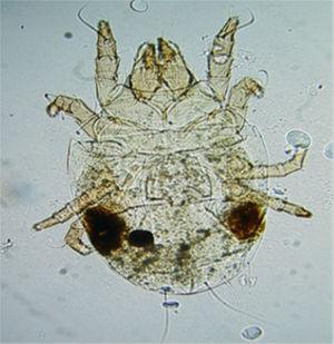 Aleuroglyphus ovatus mite present in the flour triggering anaphylaxis in a 10-year-old boy.
