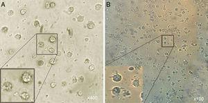 Morphological appearance of MCM-DCs (A) and Induced-DCs (B). Analysis by inverted microscope revealed that in comparison, Induced-DC were longer and had more frills than MCM-DC. These cells (both groups) looked larger than monocytes containing large intracellular granules also were more non-adherent.