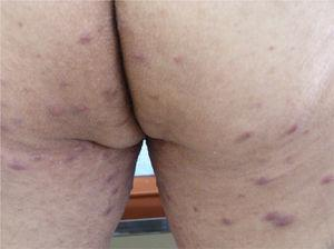44-year-old male patient complained of an intensely itchy, predominantly nocturnal, rash on buttocks, scrotum, penis and thighs. After examination of skin scales crusted (Norwegian) scabies was diagnosed. In this photo, note abundant erythematous papules on buttocks and thighs.