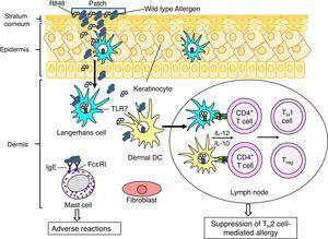 A putative therapeutic mechanism in EPIT to treat allergy. Allergens, which are applied on the surface of skin using a patch, are captured by Langerhans cells (LCs) in the epidermis and dermal dendritic cells (dDCs). These antigen presenting cells move to lymph nodes to prime CD4+ T cells. LCs, DCs, keratinocytes and fibroblasts in cutaneous tissues produce pro-inflammatory and anti-inflammatory cytokines, depending on stimuli. Use of an adjuvant, e.g. a Toll-like receptor 7 ligand R848, inducing TH1 cytokines (e.g. IL-12) and/or regulatory cytokines (e.g. IL-10) in LCs and DCs would promote induction of allergen-specific TH1 cells and/or regulatory T cells (Treg), which lead to suppression of TH2 cell-mediated allergy. It should be noticed that mast cells also present in dermis. EPIT using wild type allergens has a risk of adverse reaction due to interaction of the allergens with IgE antibodies captured by Fc??RI on the cell surface of mast cells. To reduce the risk of adverse reaction, use of hypoallergenic derivatives has been considered.