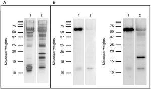 Western blot results: SDS PAGE (A) and IgE-Western blot (B) with serum from patients sensitized to garlic (left) and serum from patients sensitized to onion (right). Lane 1: Garlic, Lane 2: Onion.