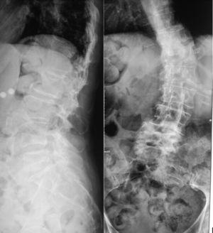 Radiografía simple de columna anteroposterior y lateral.