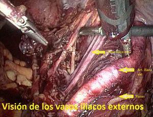 Visión de los vasos iliacos externos.