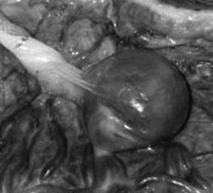 Aneurisma de arteria umbilical.