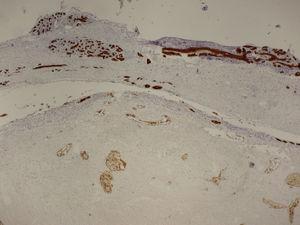 La imagen que la Figura 2, teñida con citoqueratina AE1-3, pone de manifiesto la existencia de dúctulos residuales en la zona infartada (parte inferior). En la mama normal (parte superior) la citoqueratina tiñe el epitelio ductal.