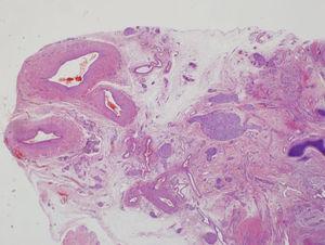 Visión panorámica de un corte de la inserción del cordón del feto acardio. Se visualizan tres luces vasculares, correspondiendo a dos arterias y una vena.