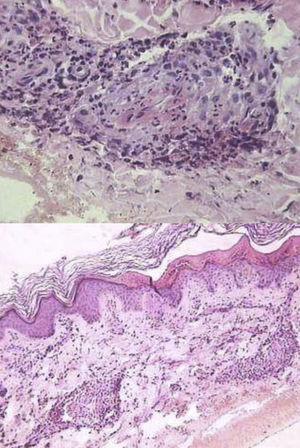 Anatomía patológica: vasculitis necrosante.