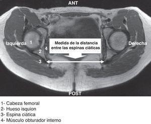 Elementos anatómicos observados en los cortes transversales de RM seleccionados.