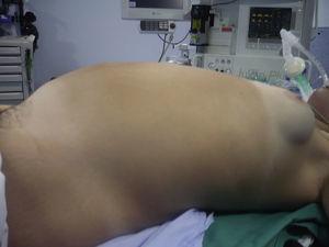 Vista de la paciente antes de la intervención.