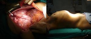 Cavidad abdominal tras ooforosalpingectomía derecha (flecha) y exéresis de la tumoración.