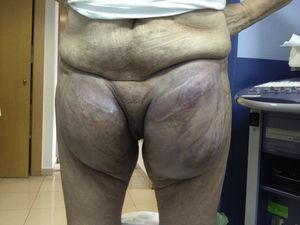 Situación del linfocele gigante inguinal bilateral previo a la escleroterapia.