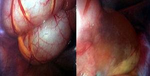 Visión macroscópica del quiste mesentérico durante la laparoscopia.
