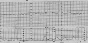 Cardiotocografía del caso 5.