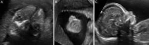 A) Órbitas con cristalinos. B) Integridad labio superior. C) Perfil y hueso nasal.