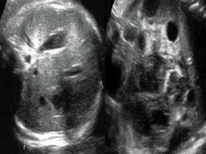 Ecografia del hemangioendotelioma fetal.