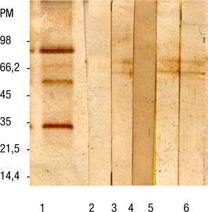 Western blot de sueros de pacientes. Línea 1: suero control positivo con antígeno total, línea 2: suero control negativo con antígeno total, línea 3: suero control positivo con antígeno purificado, línea 4: suero control negativo con antígeno purificado, líneas 5 y 6: sueros de pacientes con sospecha clínica de toxocariosis con antígeno purificado. PM: peso molecular.