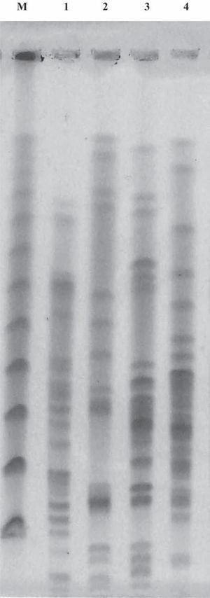 PFGE de ADN genómico digerido con XbaI de aislamientos clínicos de Enterobacter cloacae portadores del gen blaIMP-8. M: Marcador de peso molecular PFG-Marker; calle 1: ECL-M9921; calle 2: ECL-M13280; calle 3: ECL-M13624; y calle 4: ECL-M13795.