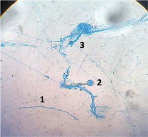 Disociación de cultivos con azul de lactofenol. Filamentos cenocíticos (1), esporangios (2) y rizoides (3).
