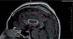 Imagen de resonancia magnética nuclear (RMN) de un paciente HIV/sida con encefalitis. Se muestra dentro del círculo una colección abscesada en el cuerpo calloso, que se tiñe periféricamente con inyección de contraste endovenoso, acompañada de un edema perilesional reactivo.