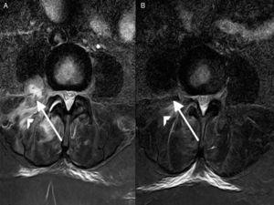 A) Artritis infecciosa, dependiendo de la articulación facetaria derecha del nivel L4-L5, con colecciones abscesificadas en el área adyacente al músculo psoas derecho en L4-L5 (flecha), y en el espacio epidural izquierdo en L5-S1, con afectación de partes blandas adyacentes (punta de flecha). B) Desaparición de las colecciones abscesificadas (flecha). Persistencia de alteración de señal de la articulación facetaria L4-L5, y mínimo edema de partes blandas (punta de flecha).