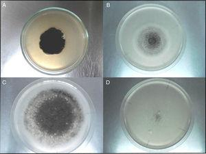 Morphological characteristics of colonies from A. niger aggregate strains in control Czapek Dox medium (CZ) (A), Czapek Dox medium without sucrose and supplied with glyphosate as the only carbon source CZC (B), Czapek Dox medium without K2HPO4 or NaNO3 and supplied with glyphosate as the only phosphorus CZP (C) and nitrogen source CZN (D), at 10 days of incubation.
