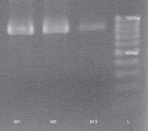 RT-PCR from purified samples (M1, M2 and M3) runned in a 1.5% agarose gel. L: 100bp Mass Ruler (Promega).