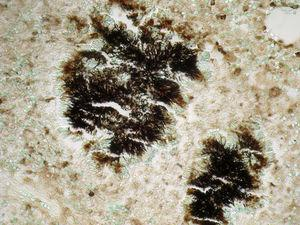 Se observa grano de azufre con bacterias formando una empalizada en una biopsia pleural. Tinción Gomori-Grocott 400×.