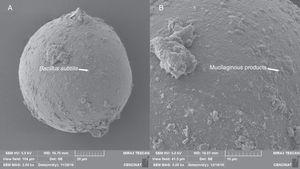 "Scanning electron micrographs of surface of A. colombiana spores. (A) B. subtilis adhering to the surface of the laminated layer of the spore surface after 15 days of inoculation. (B) Mucilaginous outer hyaline layer starting to ""peel off"" and being replaced by mucilaginous products (arrow)."
