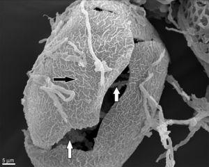 SEM observation of T. canis eggs + C. keratinophylum incubated for 14 days. Alterations in the shell structure (black arrow), presence of mycelia inside the egg and egg rupture (white arrow) (1400×). Type 3 effect.