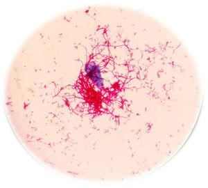 Coloración de Kinyoun directo del hemocultivo positivo.