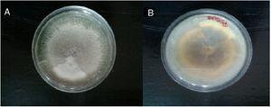 A. Macromorfología en agar papa dextrosa a 28°C anverso. B. Macromorfología en agar papa dextrosa a 28°C reverso.