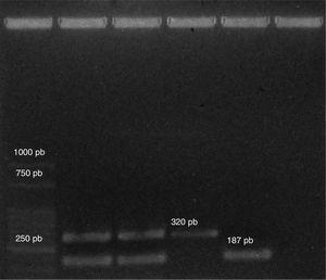 Productos de PCR para la identificación de las cepas estudiadas. Calle 1 Marcador molecular, calle 2 E. hirae 463Me, calle 3 E. hirae 471Me, calle 4 E. faecalis ATCC 29212, calle 5 E. hirae F6, calle 6 control negativo.
