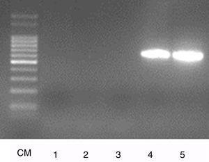 Amplificaciones obtenidas mediante PCR específica para el serovar Hardjo Bovis. Los productos de amplificación fueron separados en gel de agarosa al 2%. CM: CienMarker (marcador de PM); 1: serovar Pomona; 2: serovar Castellon; 3: serovar Canicola; 4: cepa aislada; 5: control+.