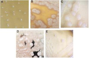 Colony morphology of lactic acid bacteria isolated from tepache. (A) Strain AB-1, (B) strain AB-2, (C) strain AB-3, (D) strain AB-4 and (E) strain AB-5.