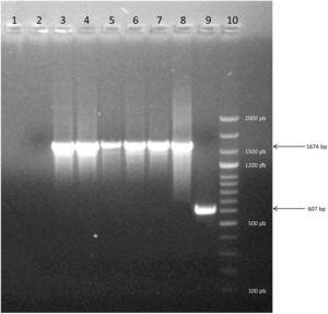Electrophoresis on agarose gel of PCR products showing representative strains of Group 2. Lane 1: Negative control of PCR. Lane 2: Negative control of DNA extraction. Lane 3–7: profile of five strains evaluated. Lane 8: positive control of Group 2 (1674bp). Line 9: positive control of Group 1 (607bp). Line 10: molecular marker Dangsheng Biotech 100bp DNA ladder plus.