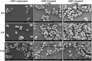 SEM images of ASP-1 (1× MIC and 1× MBC) treated and untreated S. aureus ATCC29213 cells. Normal morphology of ASP-1 untreated S. aureus ATCC29213 cells (45000×) at different time points (a, d, and g); ASP-1 treated bacterial cells at 0h showing smooth cell surfaces with no discernible ultrastructural changes (b and c); ASP-1 treated cells showing deformities and central perforations within 6h of exposure (e and f); the SEM image reveals extensive cell surface damage at 12h as indicated by spurting of cellular contents and loss of shape (bending) with the central hollowing (h); several biconcave cells with central depression and cavity showing concomitant leakage of cytoplasmic contents at 1× MBC (16μg/ml); the field also shows some distorted cells lying at the periphery (i), and cells with dents, surface blebs and plicated surfaces have been observed. Several cells appeared as punctured with spewed-off cytoplasmic contents. Black solid arrows have indicated major structural changes.