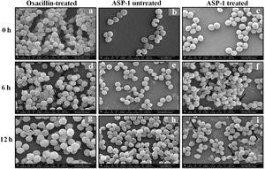 SEM images of oxacillin-treated, ASP-1 (1× MIC and 1× MBC) treated and untreated MRSA-4 cells. The SEM images of oxacillin (1× MIC=32μg/ml)-treated MRSA-4 cells captured at 0, 6 and 12h (a, d, and g); though few cells appear healthy as revealed by septum formation, other cells turned biconcave and deformed, and a single cell lying near the center showing a circular depression at 12h (d and g); SEM images of untreated MRSA-4 cells showing normal morphology and several healthy cells at dividing stage (b, e, and h); micrographs of ASP-1 treated cells (c, f, and i); cells showing normal morphology at 0h (c); biconcave and elliptical cells exhibiting central collapses, deep craters and deformations (f–i); and ASP-1 (1× MBC=16μg/ml) treated bacterial cells at 12h, showing centrally collapsed biconcave cells with spewed-off contents after cell lysis (i). Black solid arrows have indicated major structural changes.