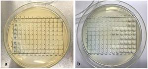 Control de viabilidad luego de la exposición a azul de toluidina con lámpara tipo reflector de 20W e incubación a 37°C durante 24h, con subcultivo de los pocillos en agar Sabouraud glucosa: a) antes de la incubación; b) luego de la incubación.
