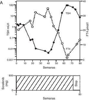 Tiroiditis en paciente en tratamiento con sorafenib. Adaptado de van Doorn et al.36.